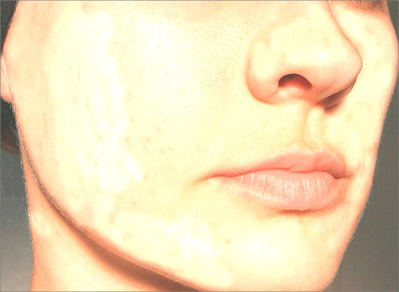 Обработка лица в Фотошопе с помощью кисти