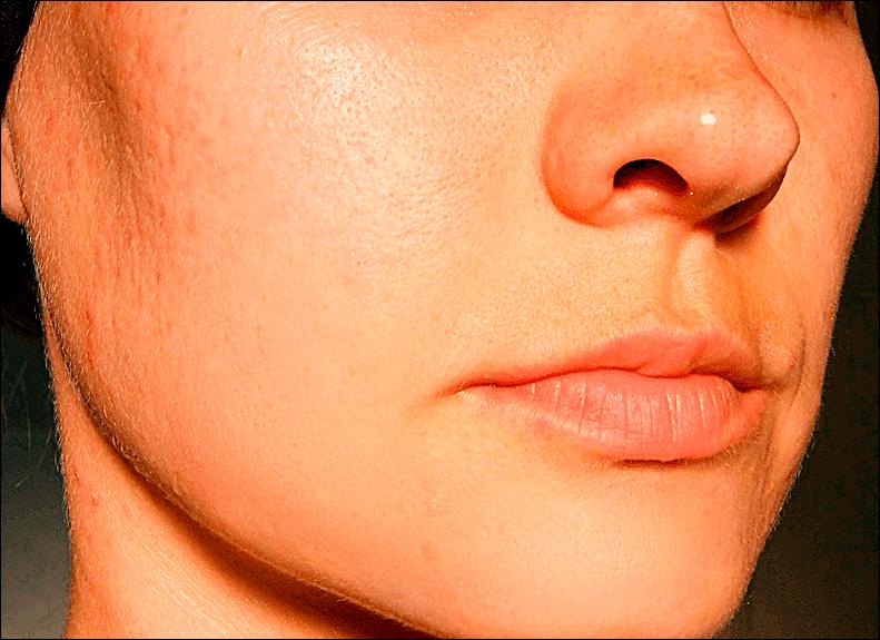 Результат выравнивания цвета лица в Фотошопе