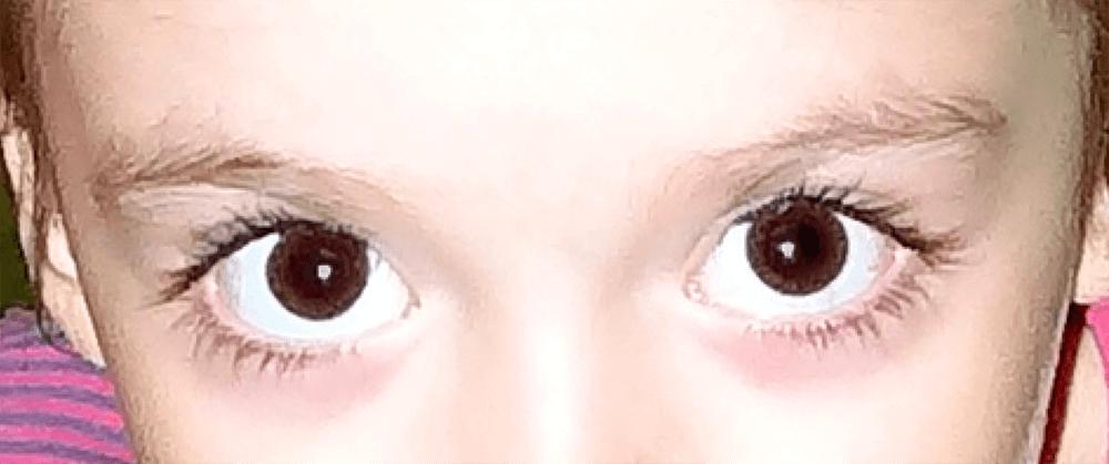 Результат удаления красных глаз на фото в Фотошопе