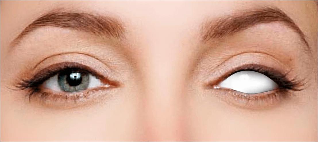 Результат создания белого глаза в Photoshop